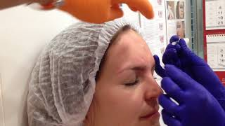 Практические занятия по ботулинотерапии: постановка рук и рекомендации по применению ботокса.
