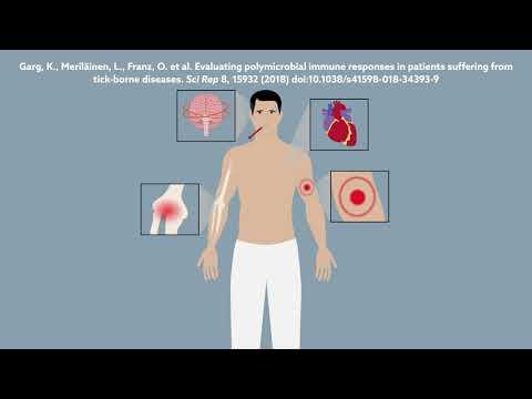 Tick-borne Disease Is Not Just Lyme