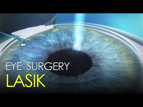 LASIK eye-correction surgery