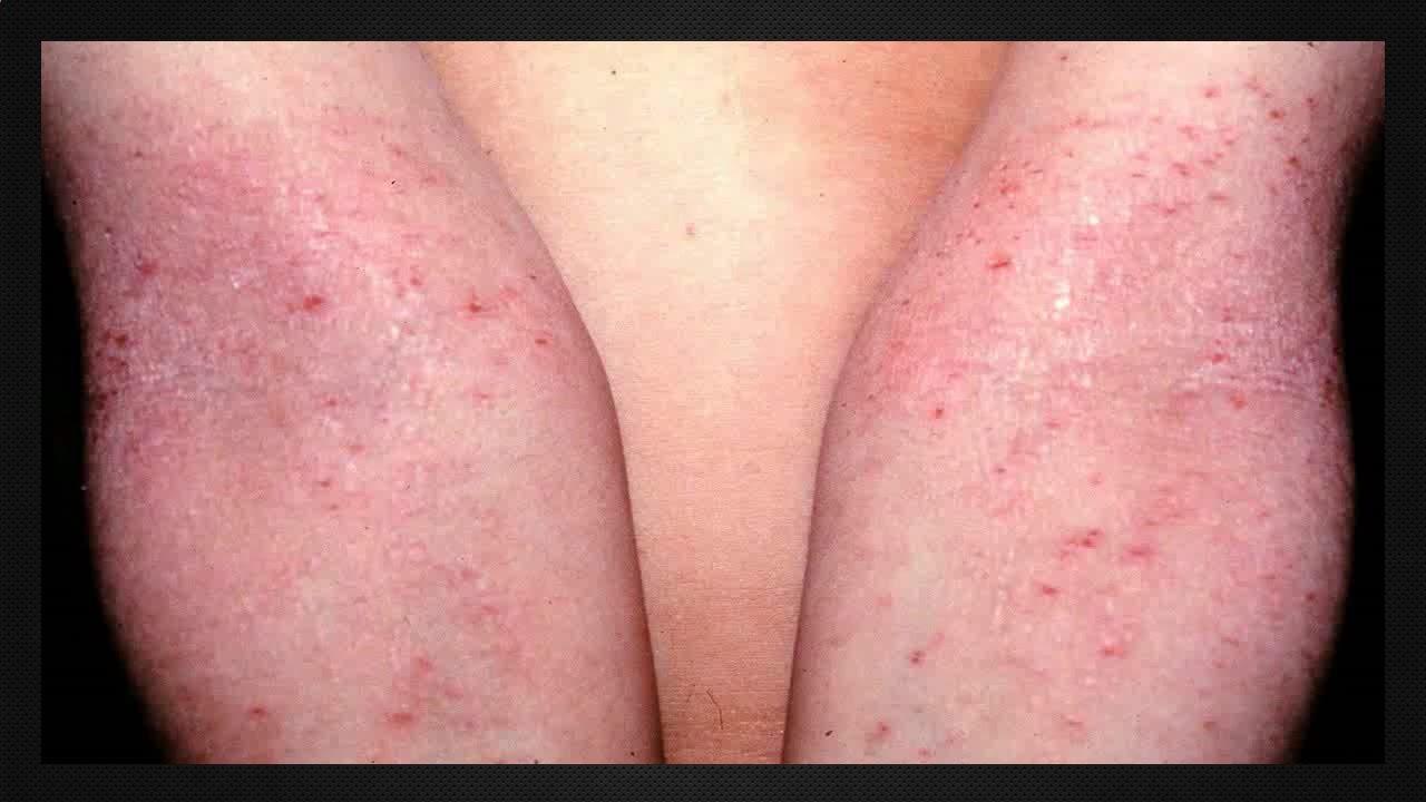 como curar una reaccion alergica en la piel