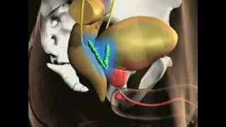 Anatomy of the Prostate
