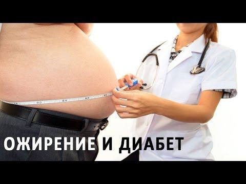 Причины ожирения при сахарном диабете 2