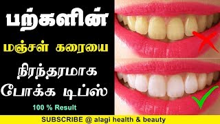 How To Whiten Teeth In 2 Minutes Tamil Health Beauty Tips