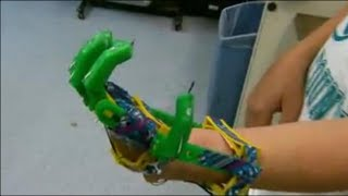 Boy gets prosthetic hand made by 3-D printer Thumbnail