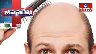 Solution for Baldness Problems | I Care Aesthetic Clinic | Jeevana Rekha | Health News | hmtv