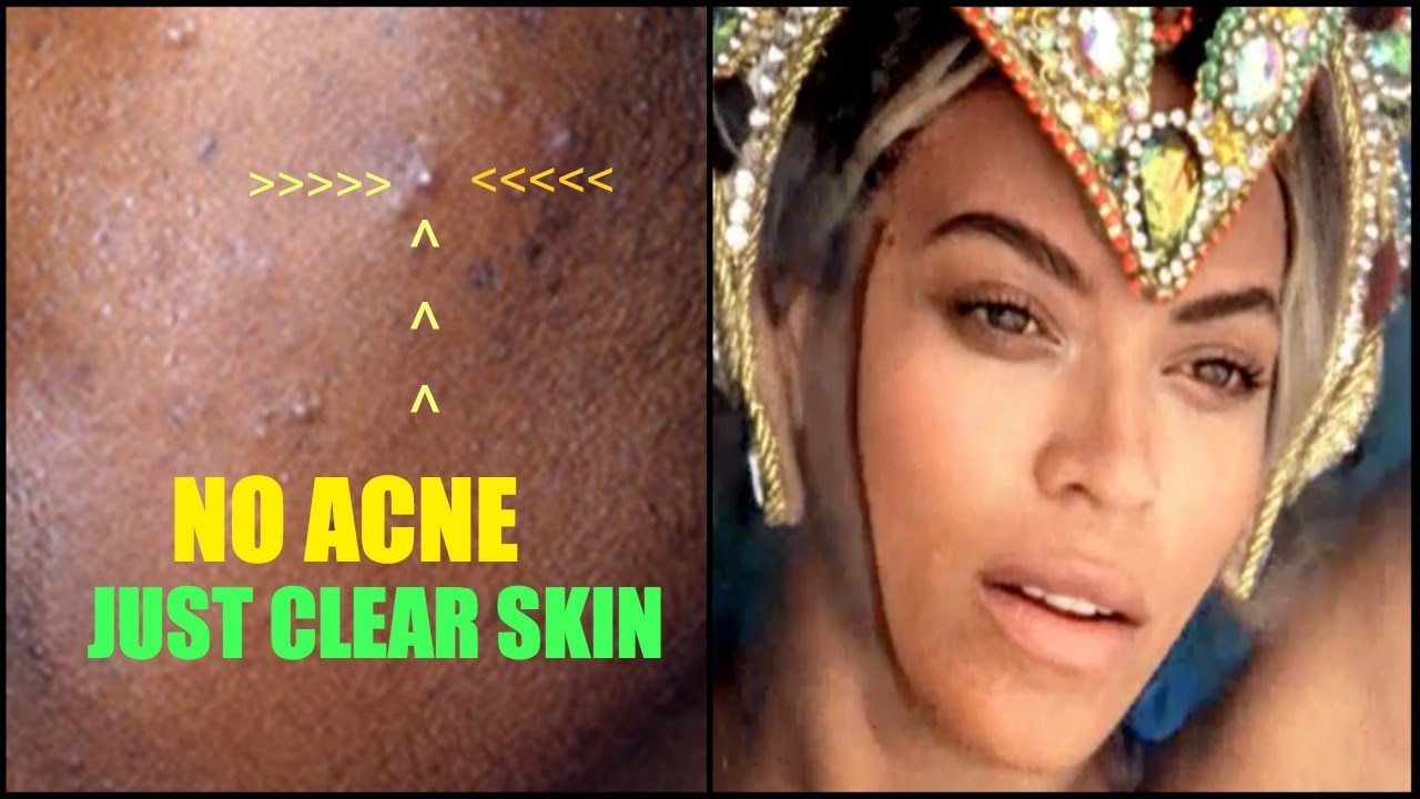 no acne only clear skin | fade your acne scars manuka honey garlic