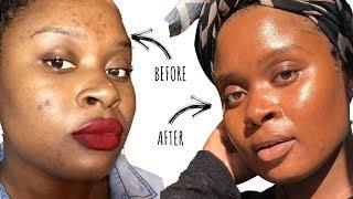 How to Clear Acne + Acne Scars | Jasmine Mitchell