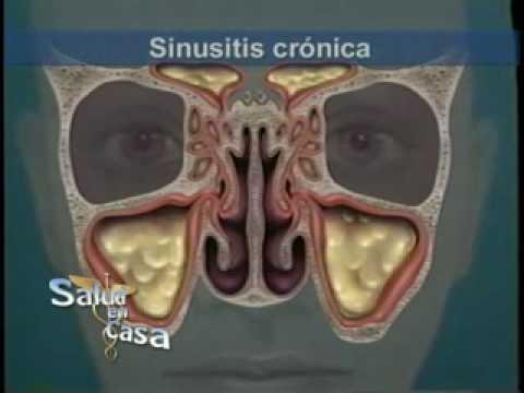 Sinusitis maxilar aguda