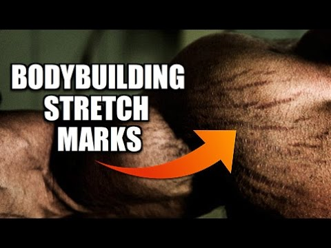 Bodybuilding Stretch Marks: Can They Be Eliminated?