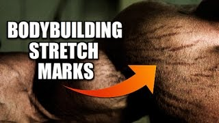 bodybuilding stretch marks can they be eliminated