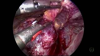 CESAREAN SCAR PREGNANCY AND LAPAROSCOPIC MANAGEMENT