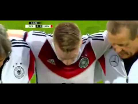 marco reus injury out of cup   germany vs armenia 2014   friendly 06 06 2014  WWW CONVERT THAT COM