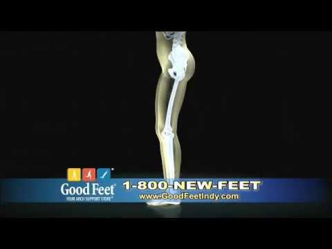 Doctor Review on Good Feet Arch Supports Indianapolis