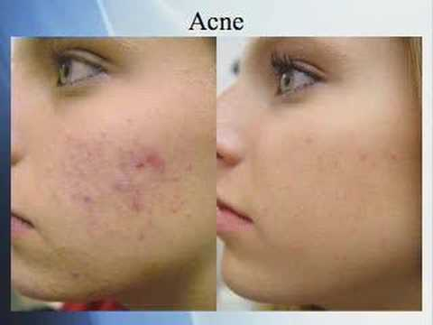 Acne Treatment With Fotona Laser Youtube