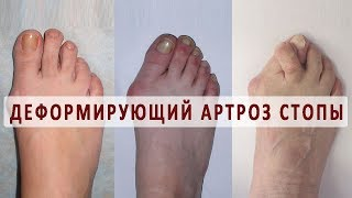 Что такое деформирующий артроз стопы?