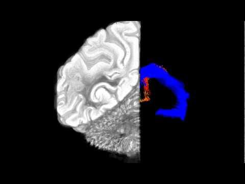 Diego García González-Rhesus monkey brain 3D reconstruction