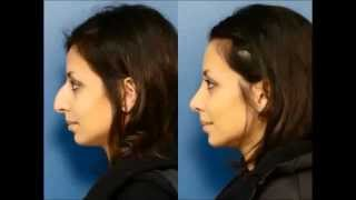 Rhinoplasty Before and After Gallery North Carolina