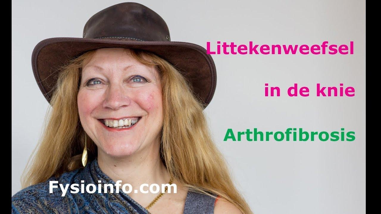 Arthrofibrosis Littekenweefsel In De Knie Fysioinfo