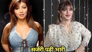 6 बॉलीवुड हीरोइन जिनका सर्जरी ने बिगाड़ दिया हुलिया   6 Worst Cosmetic Surgery of Bollywood Actress Thumb