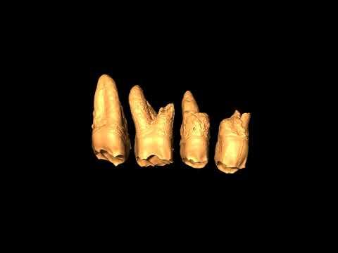Les dents de l'Homme de Luçon