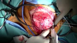 Removal of thyroid carcinoma in a dog using ligasure