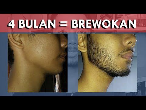 Penggunaan 4 Bulan | Minoxidil Kirkland Indonesia