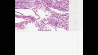 Shotgun Histology Nerve