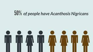 ACANTHOSIS NIGRICANS: What causes Acanthosis nigricans?: Acanthosis Nigricans Symptoms, Treatment, P.