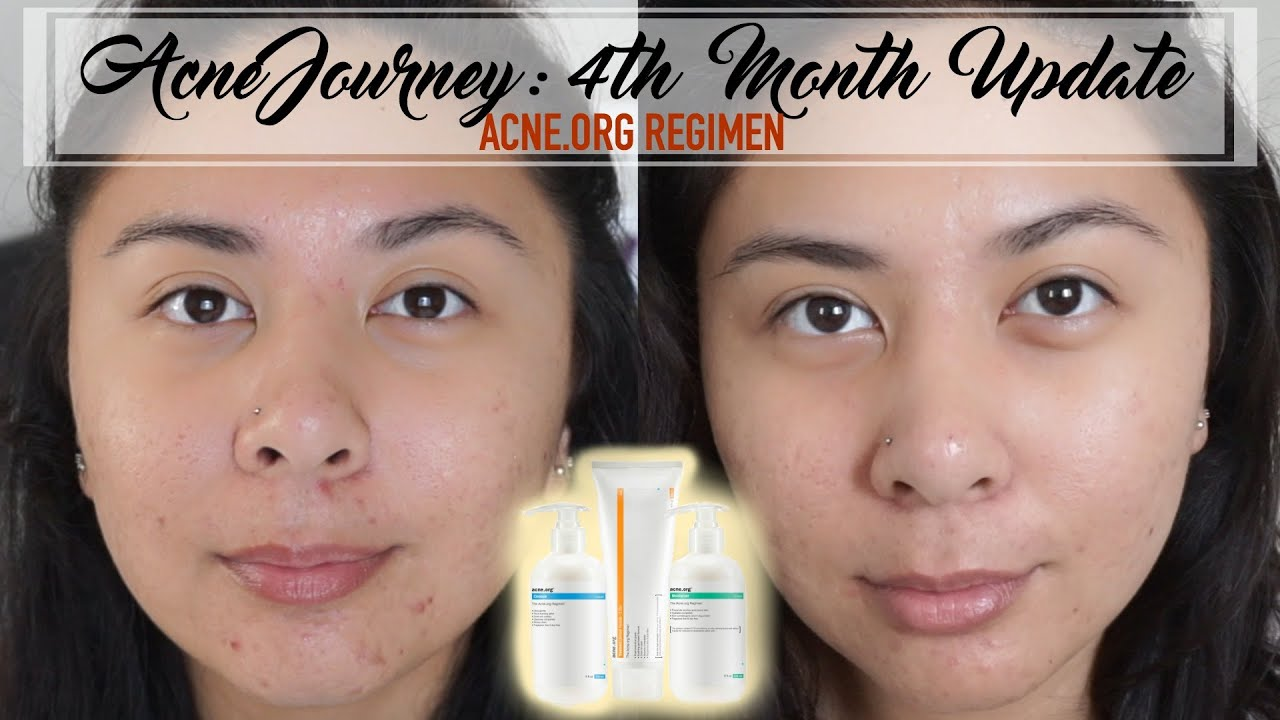 4a8530c6f ACNE.ORG Journey: 4th Month AHA GOES TO WORK! 😛 | riadavidet - YouTube