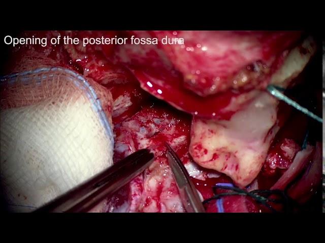 Pétrosectomie combinée pour un méningiome petroclival