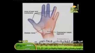 أسباب وعلاج التنميل والألم والإلتهاب والتورم الذى يحدث فى اليدين لكثير من النساء د أمير صالح