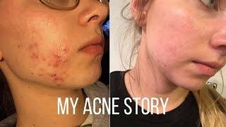 Video How I Cleared My Acne download MP3, 3GP, MP4, WEBM, AVI, FLV Januari 2018