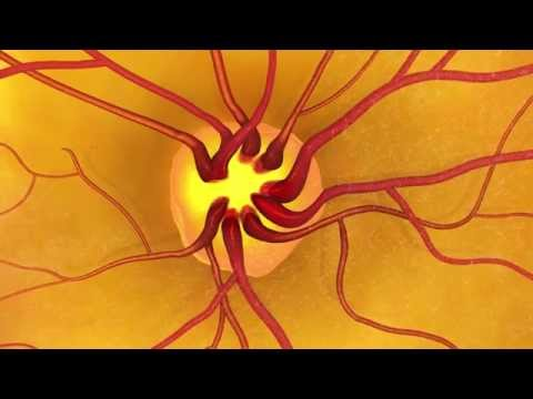 Detecting Glaucoma:  Why is dilation important?