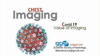 COVID 19 (value of imaging) - DRE - Prof. Dr. Mamdouh Mahfouz
