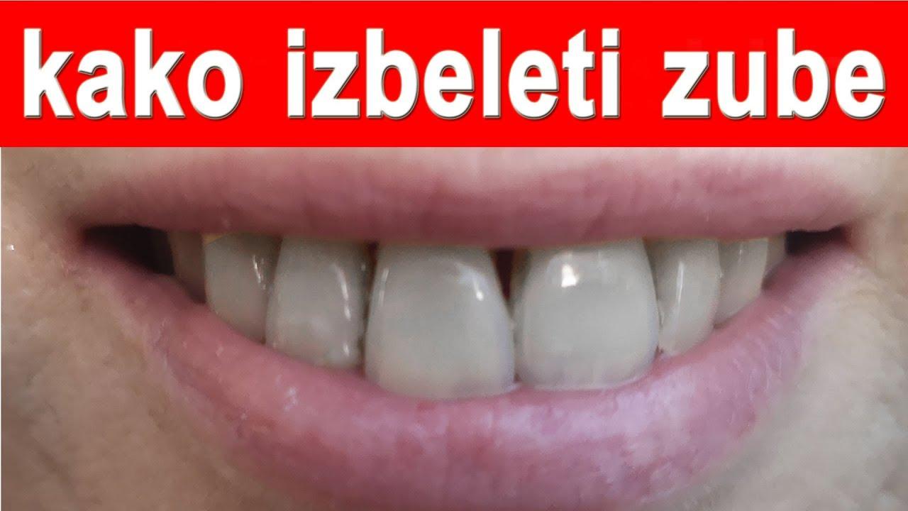 Beljenje zuba kurkumom iskustva
