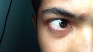 Intense Eye Twitching!  How to stop eye twitching? | mata berkedut