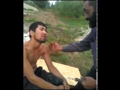 Армянин вырывает зуб узбека плоскогубцами!