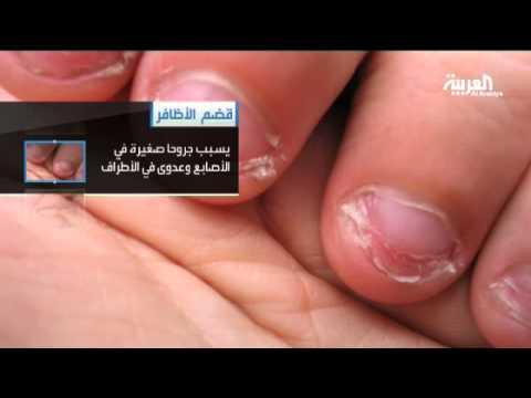 قضم الأظافر يؤثر على الصحة Youtube