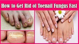 नाखून के संक्रमण से बचने के उपाय - How to Get Rid of Toenail Fungus Fast, Toenail Fungus Treatment