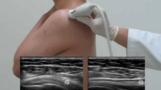 US-guided exam and injection of the shoulder _0516 Final.flv
