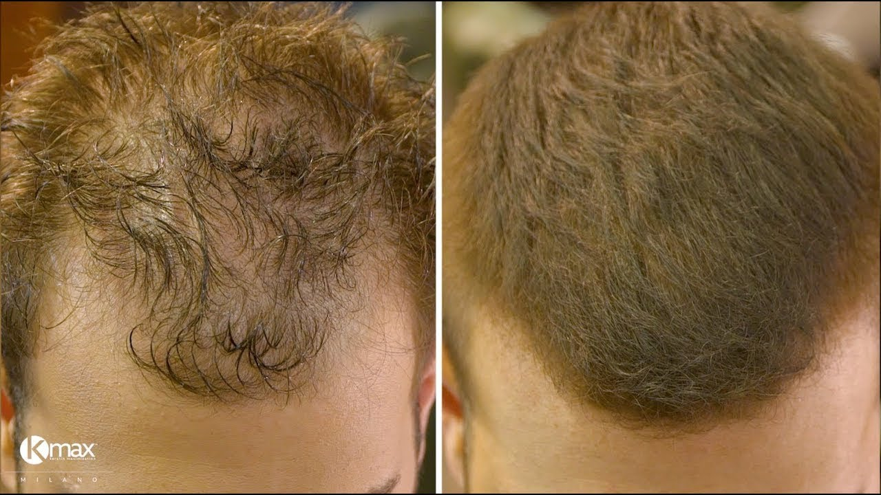 Come tagliare e nascondere il diradamento dei capelli con ...