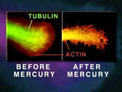 How Mercury Causes Brain Neuron Degeneration - University Of Calgary
