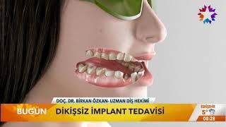 Lazerli Dikişsiz İmplant, Star TV Haber - Birkan Taha Özkan