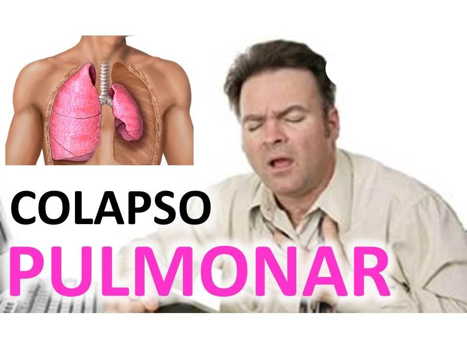 Colapso Pulmonar Disminucion Brusca De La Respiracion
