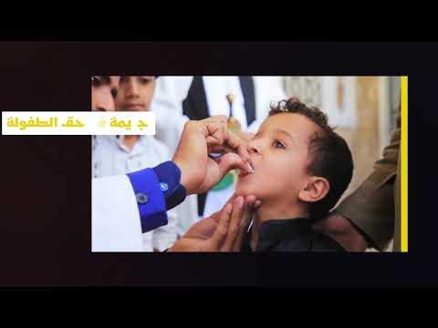 التحصين الروتيني حماية للأطفال من أمراض الطفولة القاتلة