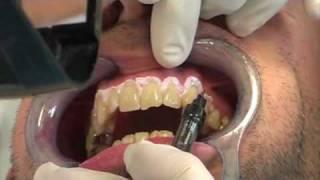 видео Heydent - гель для лазерного отбеливания зубов