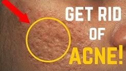 hqdefault - Pimple Marks Removal For Men