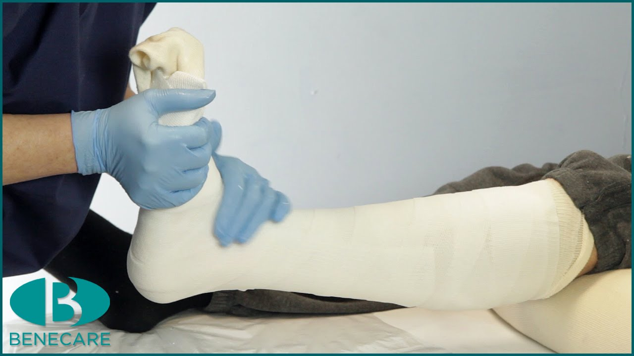 how to apply a below knee focused rigidity cast frc youtube