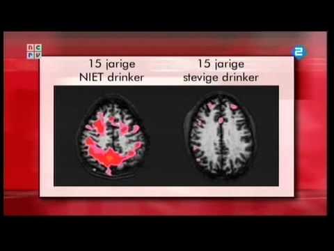 Wat Doet Alcohol Met De Hersenen Youtube