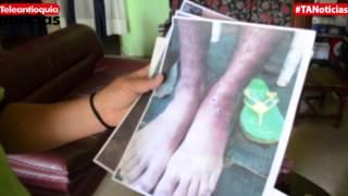 Heridas por leishmaniasis no dejan usar calzado a un policía en el Chocó